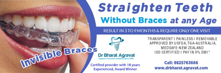 Invisible clear braces for teeth cost, price, reviews, pros-cons, before-after from India_s leading best cosmetic dentist Bharat Agravat Ahmedabad Gujarat.